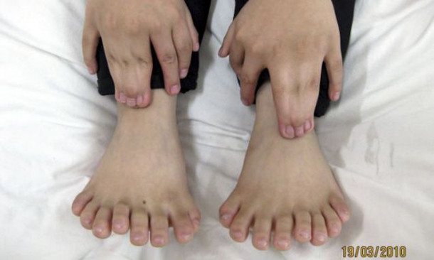 guacala... miles de dedos
