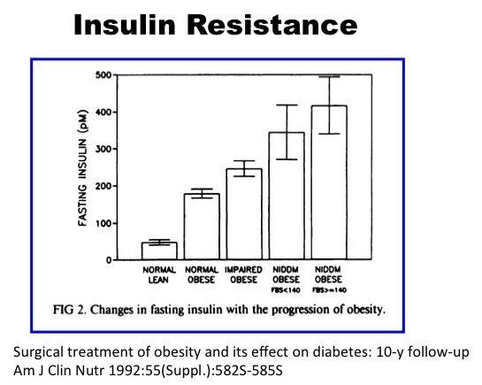 The Biggest Lie T2d 2 Diabetes Health Fitness Obesity