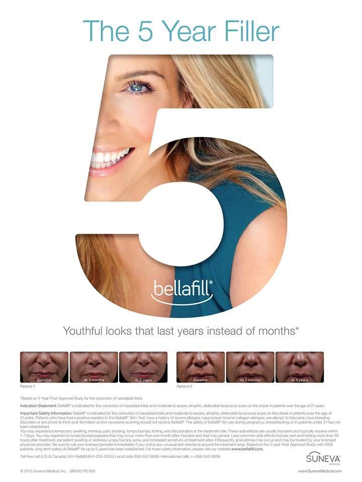 Pin by Suneva Medical on Bellafill® Cosmetic in 2019 | Skin