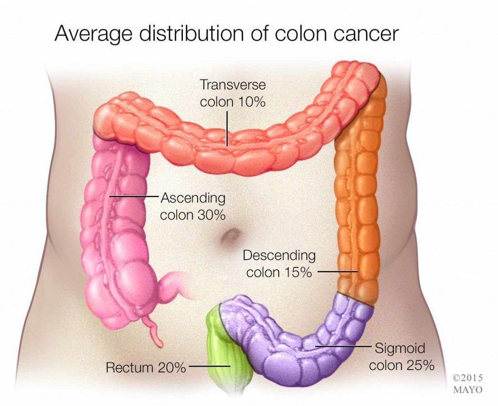 Mesothelioma Etiology Mesothelioma Cancer Prevention Cancer Colon Cancer