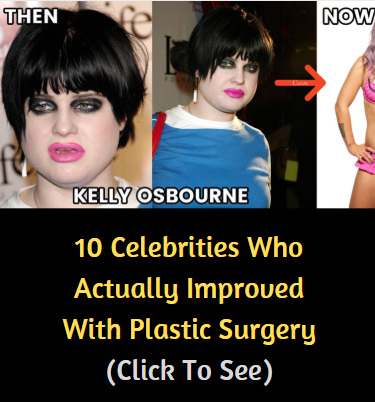 10 Celebrities Who Actually Improved With Plastic Surgery