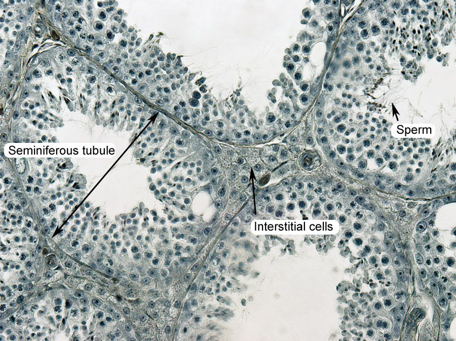 SEMINIFEROUS_TUBULES_400X.jpg 900×673 pixels | Anatomy 2 Lab ...