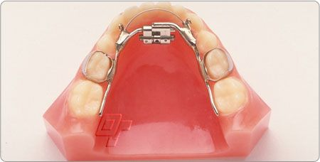 At Red Ortho Labs, we offer a wide range of expansion appliances that includes fixed and removable appliances. These appliances help in enhancing your facial appearance.