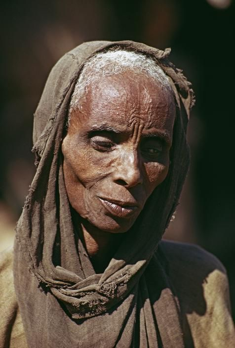 Blind woman during famine in Arabati village in Wollo