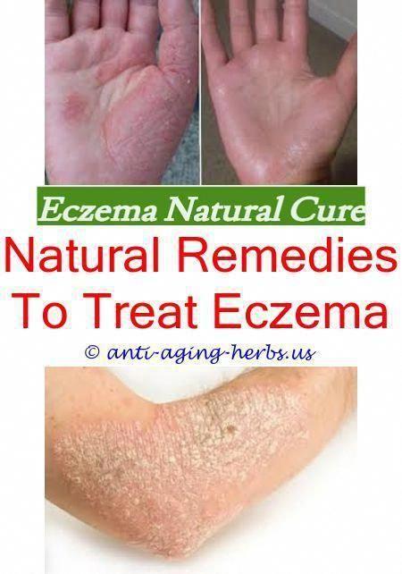 How to get rid of eczema scars on legs fast Winter eczema