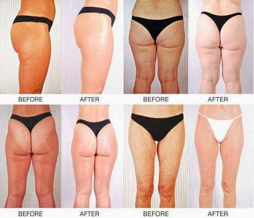 How To Get Rid Of Cellulite On Legs Home Remedies