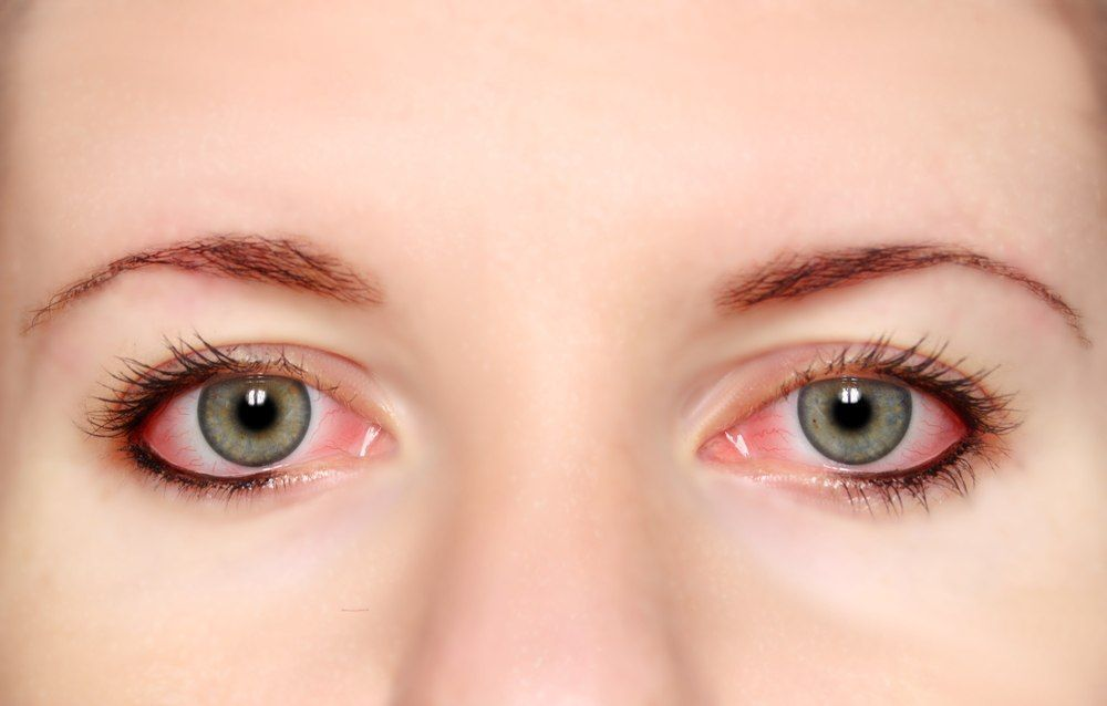 Pink Eye An Eye Condition Medically Referred To As Conjunctivitis