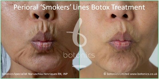 Pin by Boca Skin Blog on Botox Before and After | Smokers