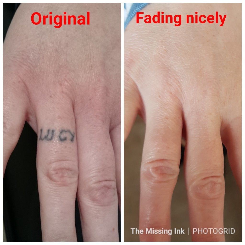 10+ Awesome Tattoo removal before after pictures ideas