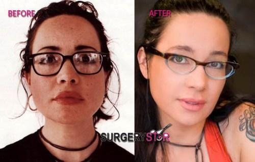 Jeaneane garafalos facial surgery