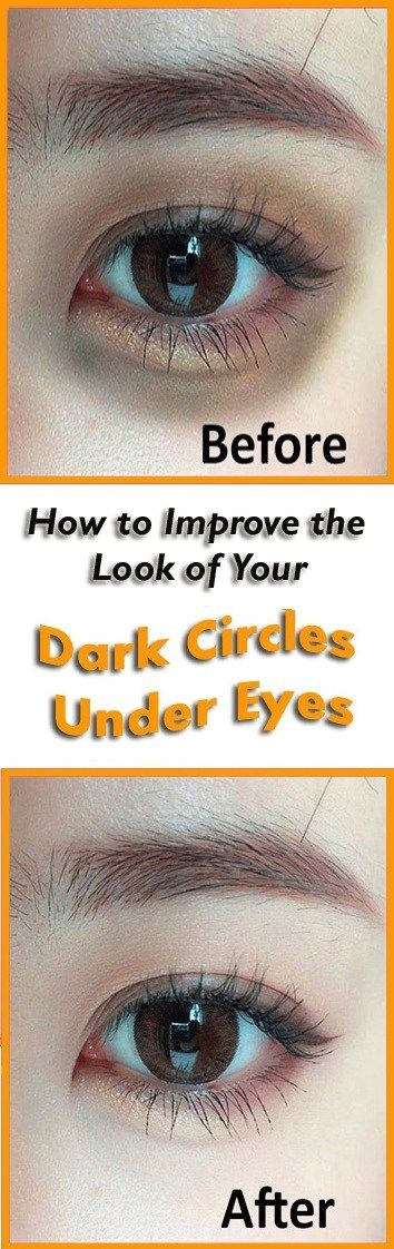 How to Improve the Look of Your Dark Circles Under Eyes ...