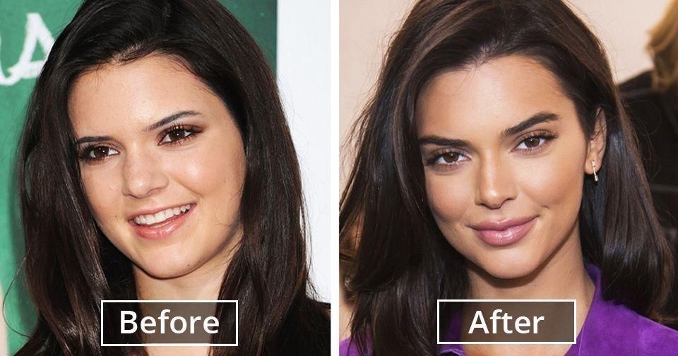 artistic lipo & plastic surgery