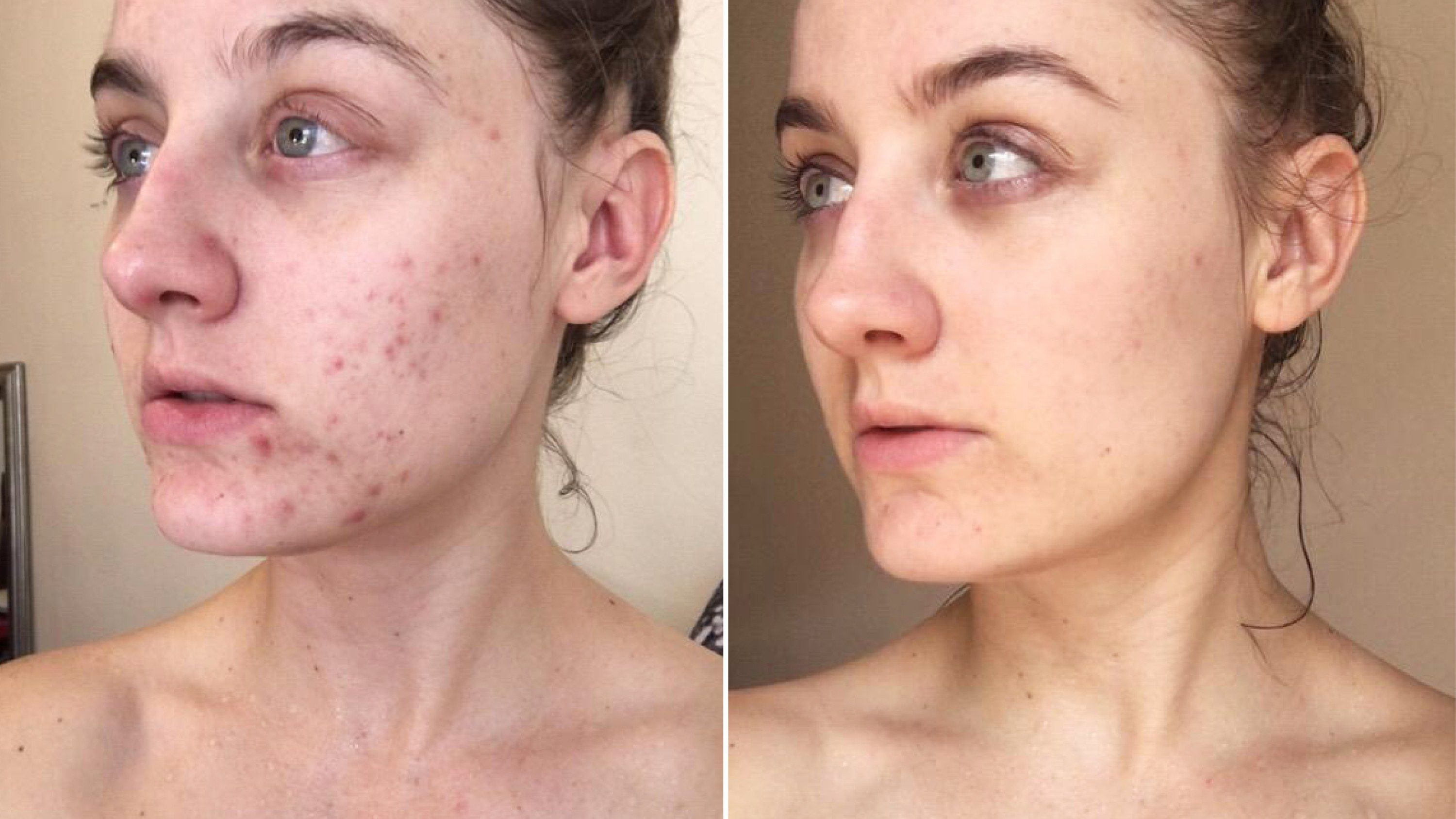 This Woman Swapped Her Cleanser For Micellar Water And The Results Are Shocking Skin Makeup Micellar Water Acne Beauty Skin Care Routine