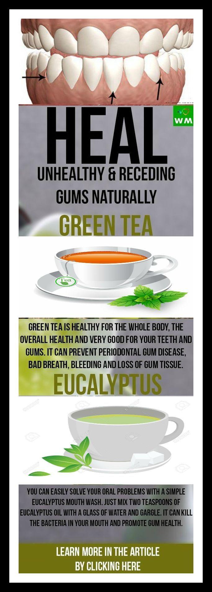 Heal Unhealthy & Receding Gums Naturally #health #fitness #recedinggreentea #homeremedies #gumhealth...