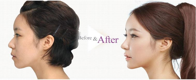 A personalized nasal tip contouring makes even the flattest of nose tip look chic and sharp using autologous tissue. It can only be achieved by Barbie nose contouring in the hands of the well-trained and experienced surgeons of The Line.  For special offers on Plastic surgery, please send your queries at info@thelineclinic.com
