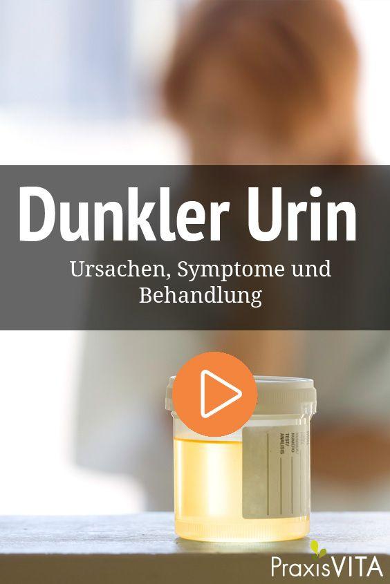 Dunkler Urin: Ursachen und Behandlung | Urin, Dunkelheit ...