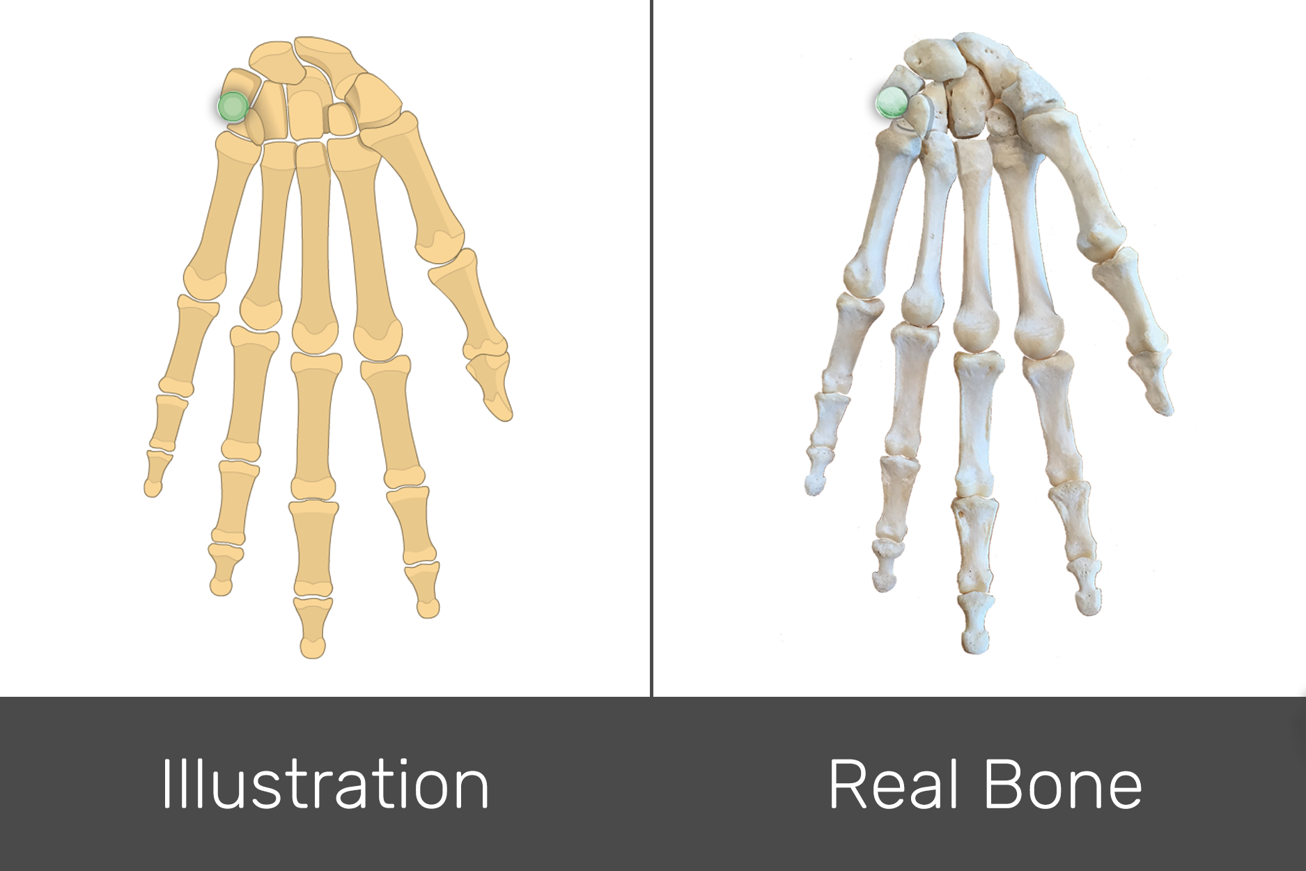 An Interactive Quiz Covering Anterior View Of Hand And