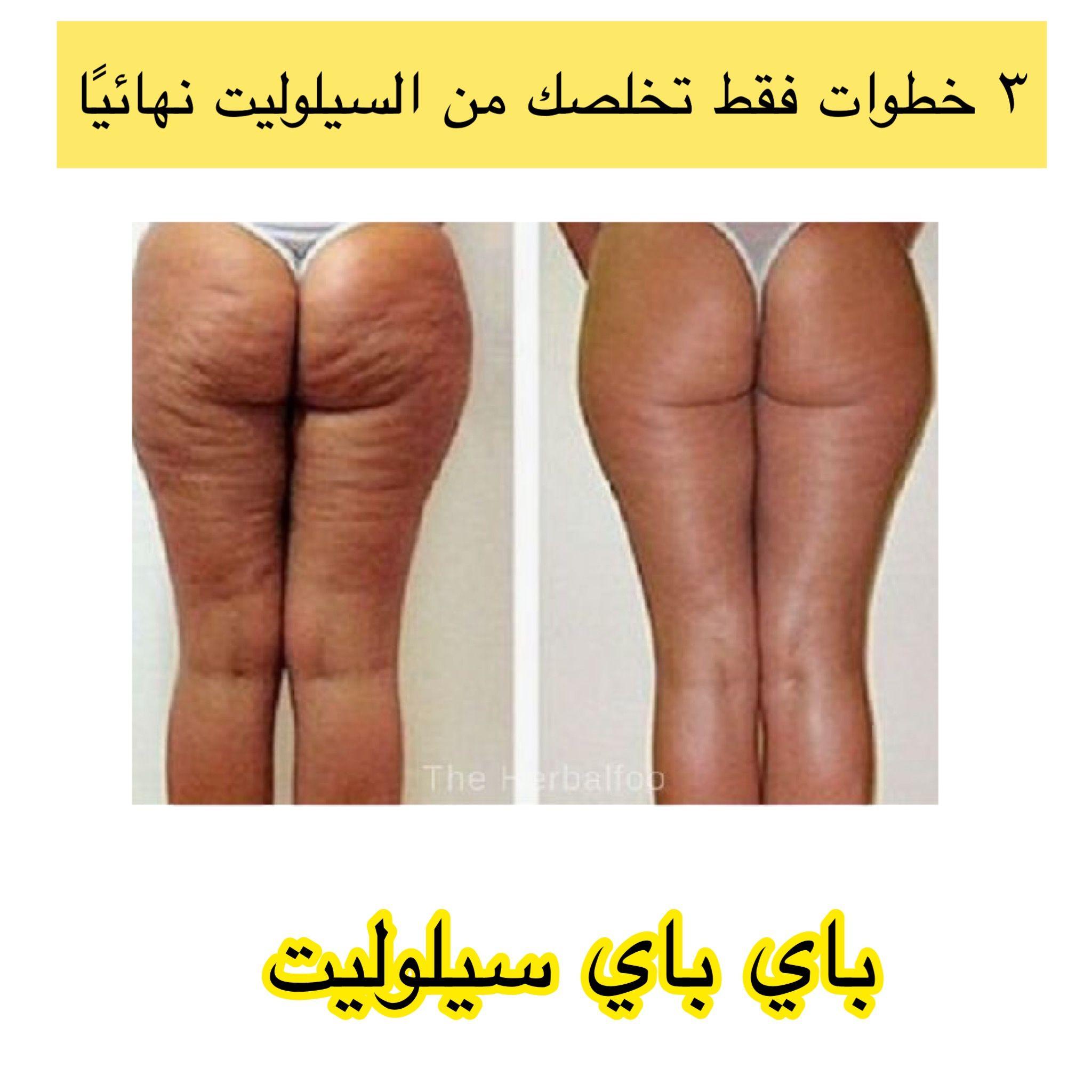 تخلصي من السيلوليت المزعج نهائيا ب3 خطوات فقط وهذا وعد مني Youtube Beauty Skin Care Routine Skin Care Beauty Skin Care