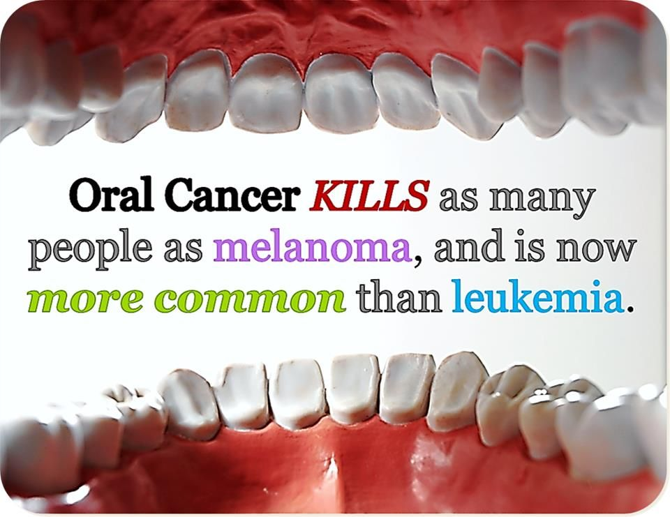 from Keith facts about oral cancer