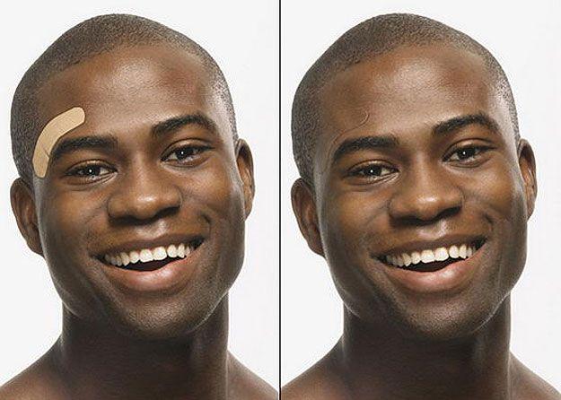 Chameleon-Invisible-Bandages-Design: Innovative Bandages Change To Match Your Skin Color