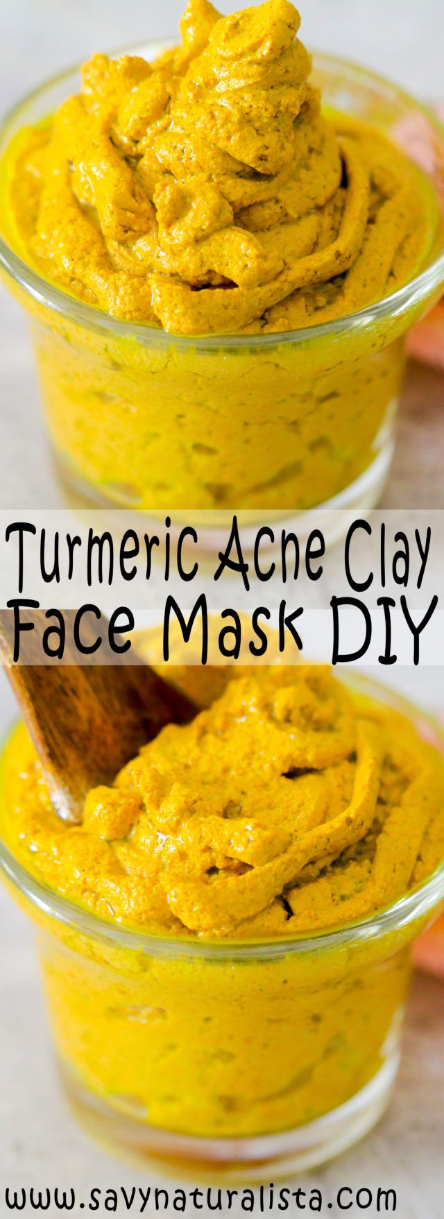 Detoxifying Turmeric Acne Face Mask Acne face mask, Acne