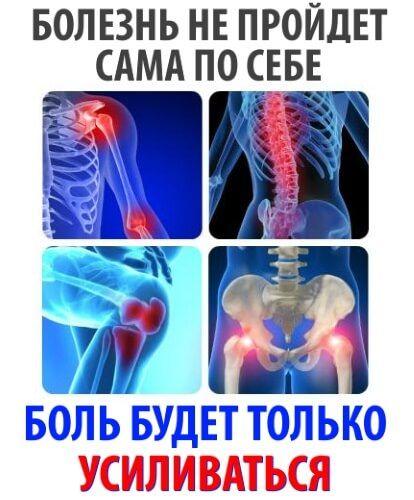 Что востонавливает суставы лечение ворсинчатого синовита коленного сустава