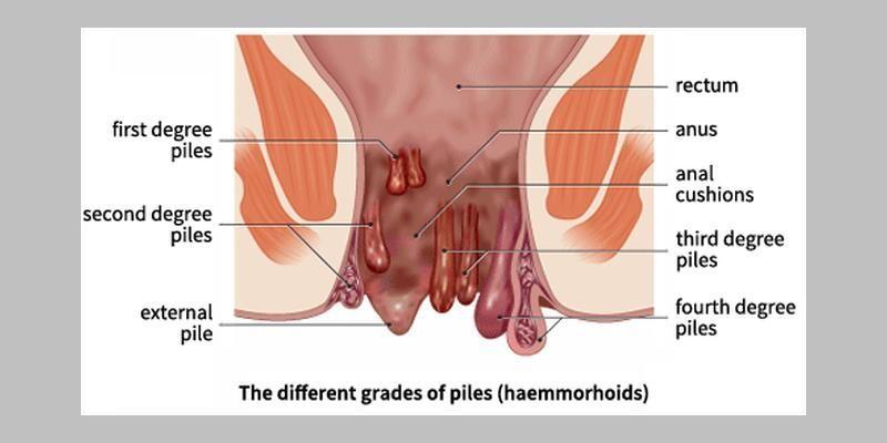 Homoeopathy In Acute Piles Haemorrhoids Swapna Potdar Hemorrhoids Treatment Bleeding Hemorrhoids Hemorrhoids