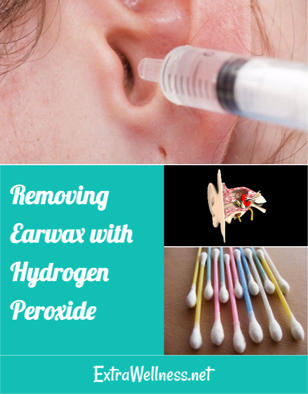 Removing Earwax With Hydrogen Peroxide Earwaxcandle