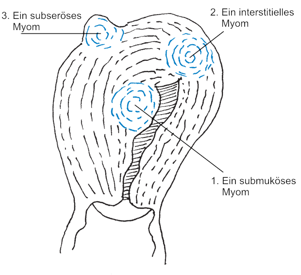Endometriose Heilung