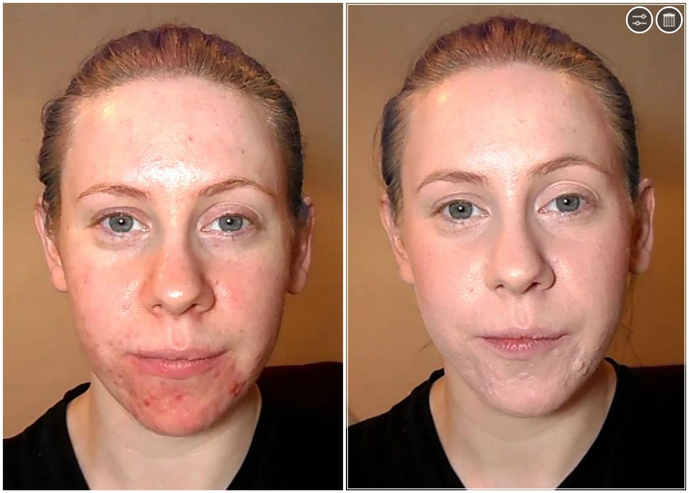 Best Foundation for Combination Skin Foundation for