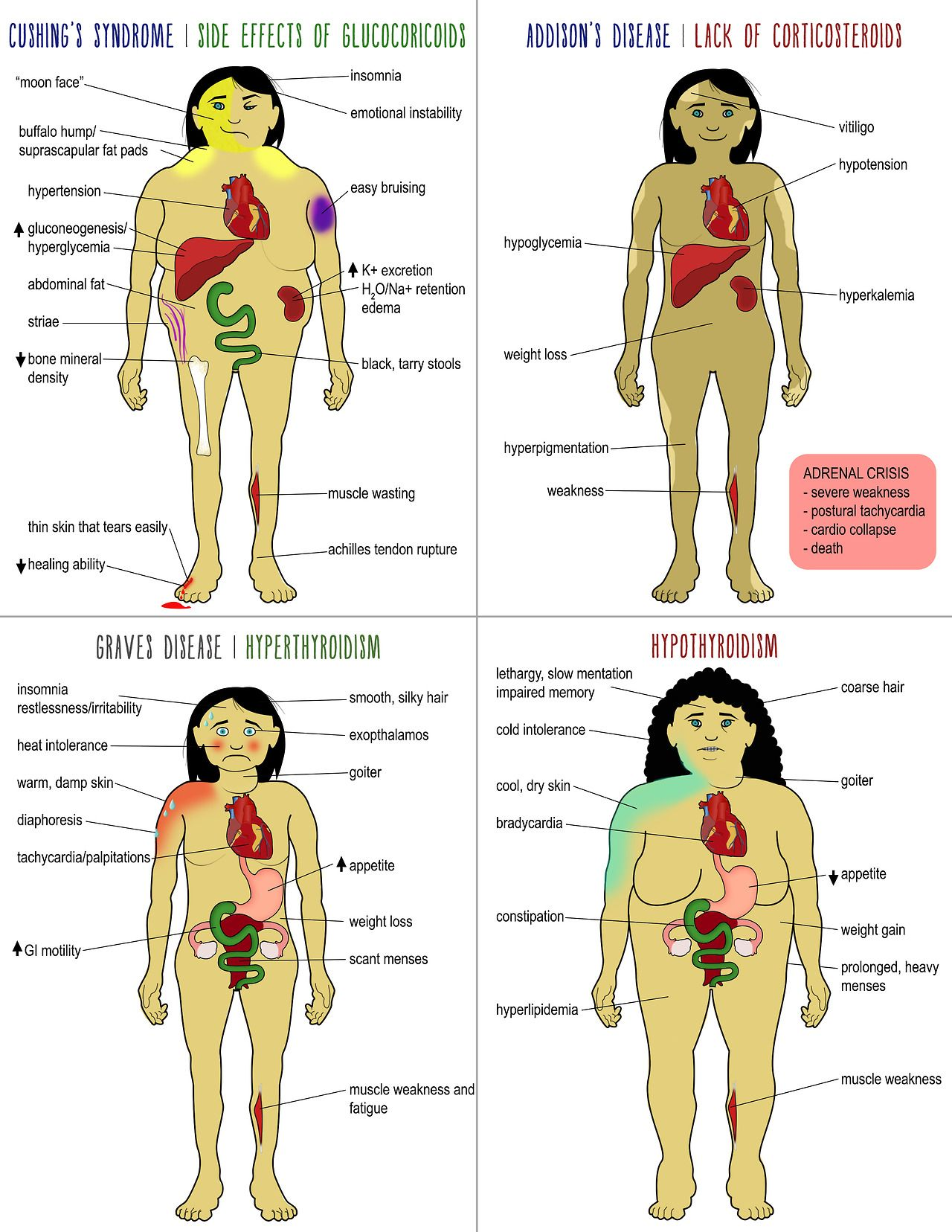 Thyroid problems / diseases and symptoms
