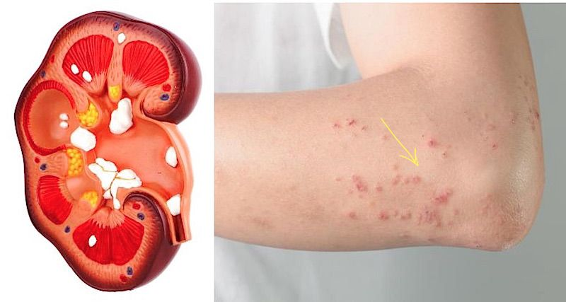11 Kidney Damage Symptoms Most People Ignore Kidney Failure Symptoms Kidney Disease Chronic Kidney Disease