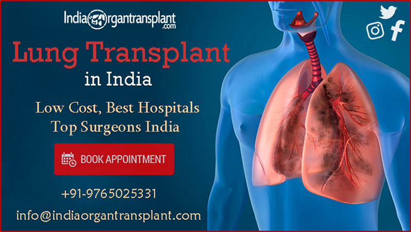 Advantageous Lung Transplant Surgery With The Top Rated Hospitals Of India Lung Transplant Best Hospitals Best Doctors