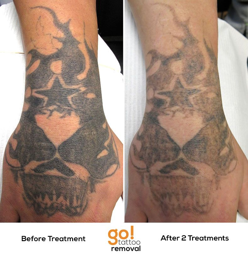 After 2 laser tattoo removal treatments were making