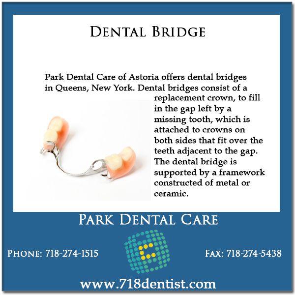 Dental Bridges Nyc Dental Bridge Dental Bridge Cost Dental