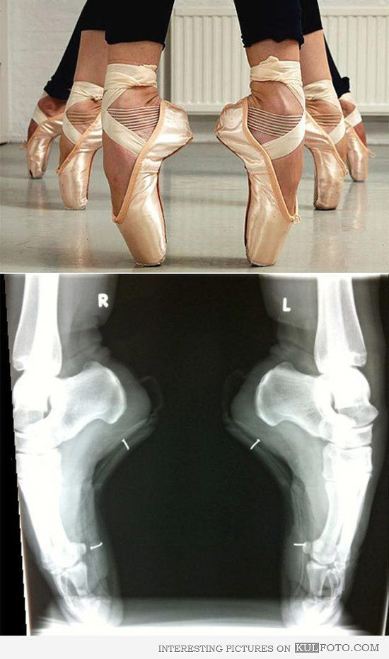 Ballerina Feet X Ray Interesting X Ray Picture Of Ballerina Feet Showing The Small Toe Bones Holding The Whole Body Weight