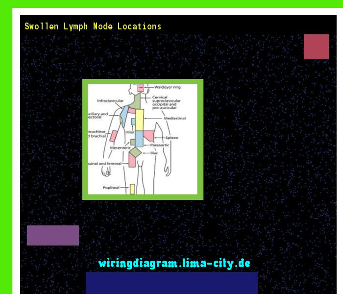 Swollen Lymph Node Locations  Wiring Diagram 18522
