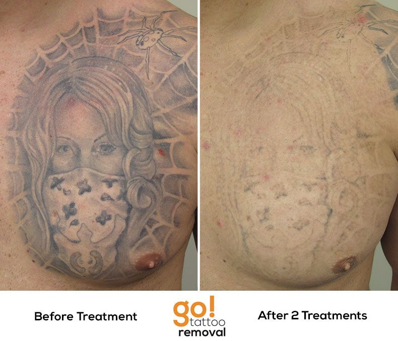 Amazing progress on this chest piece after 2 laser tattoo removal ...