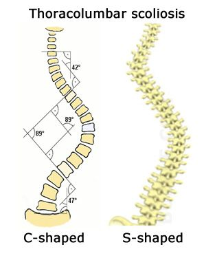 18+ Difference between osteoporosis and scoliosis info