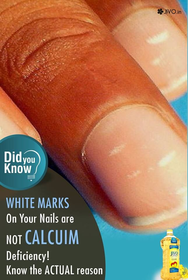 Didyouknow White Marks On Your Nails Are Not Calcuim Deficiency Know The Actual Reason According To White Spots On Nails White Marks On Nails White Toenails