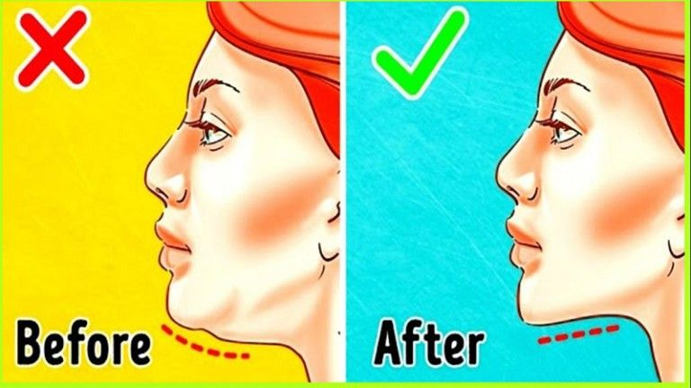 Eliminate double chin double chin facial exercises