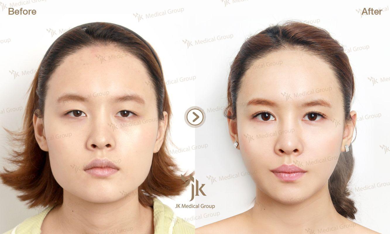 Hospital Extreme Surgery Plastic Korean Clinic Before South Korea Women After Star Korean Plastic Surgery Extreme Plastic Surgery Plastic Surgery