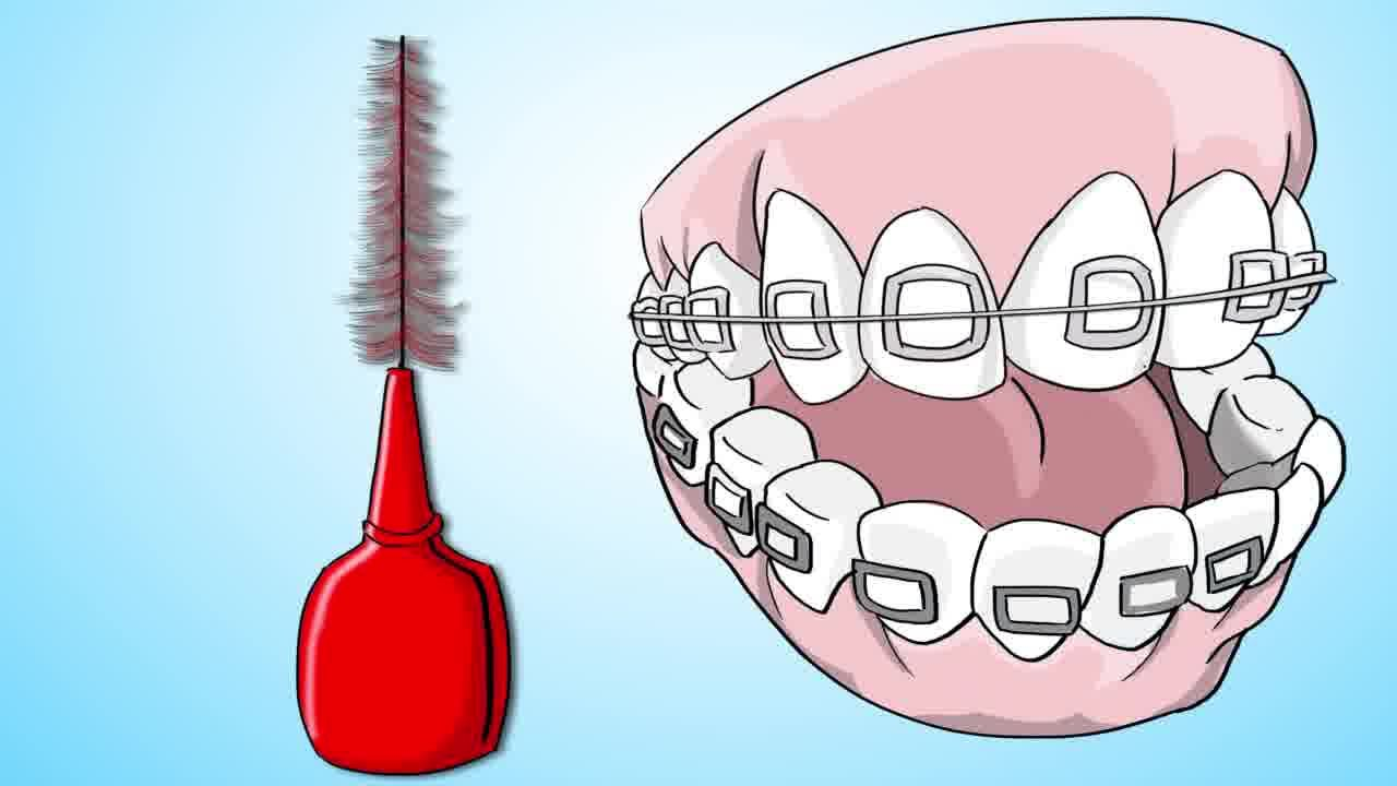 How to brush your teeth with braces on teeth braces