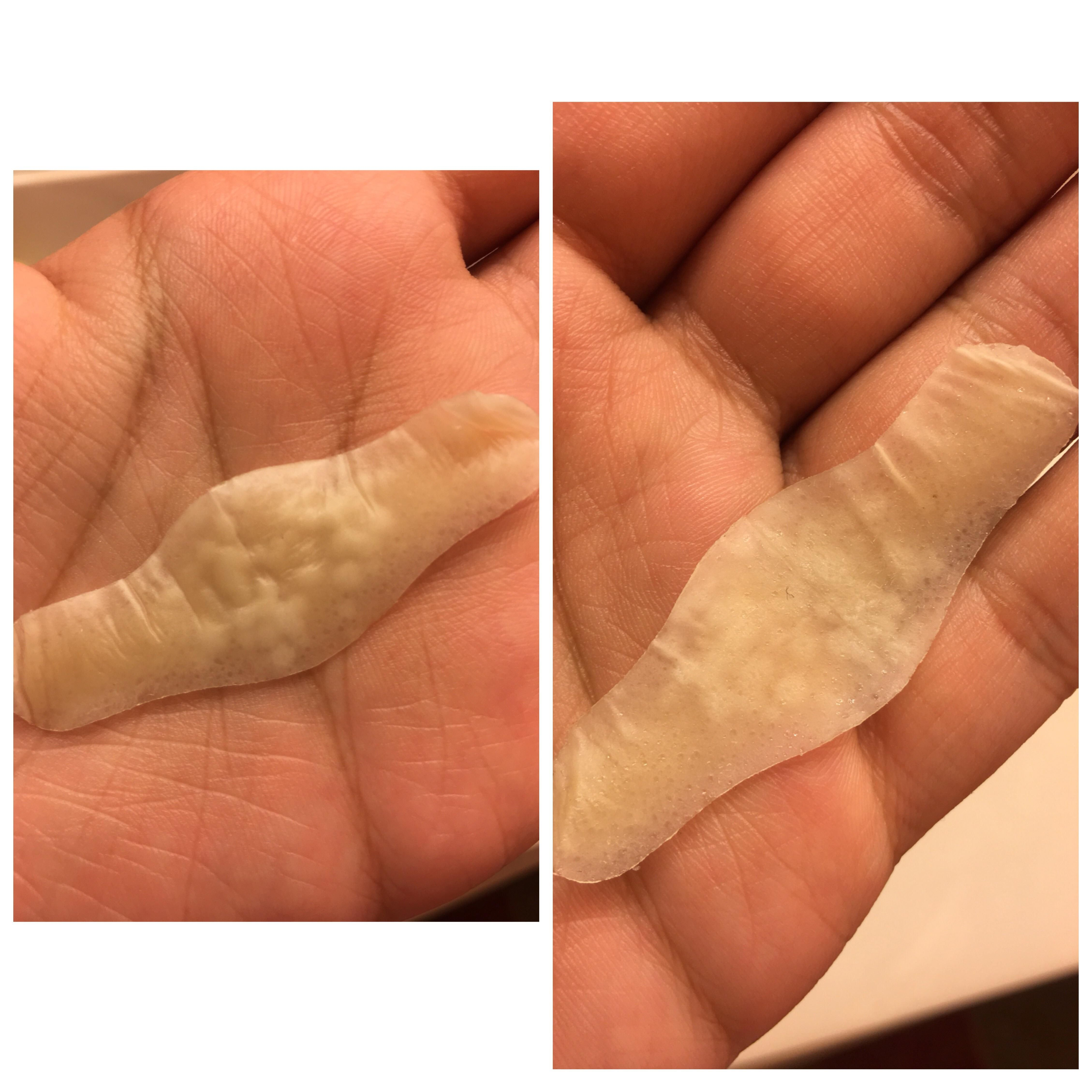 Review Band Aid Hydro Seal I Used A Hydrocolloid Bandage As A Nose Strip To Tend To My Pores Left It On Overnight Nose Strips Face Tips Bandage