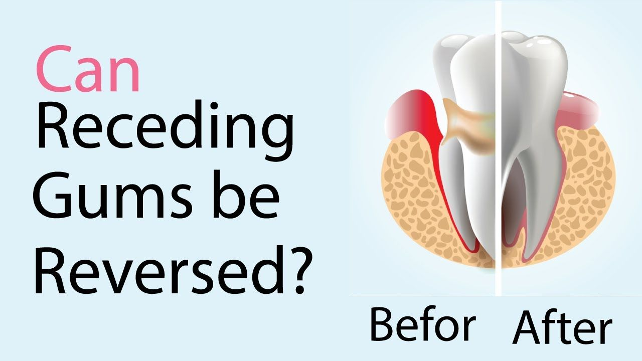 Can receding gums be reversed without surgeryyes you can