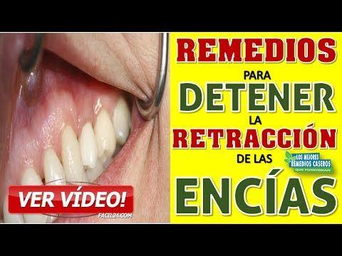 Youtube Dientes Y Muelas Remedios Remedios Caseros