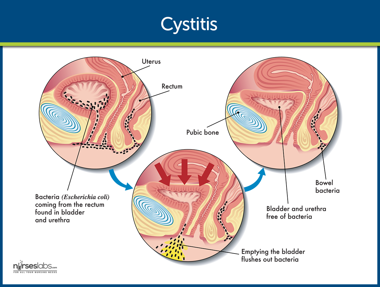 Cystitis Pathophysiology Nursing Care