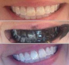 Sararmış dişler nasıl beyazlar? Pratik diş beyazlatma önerileri