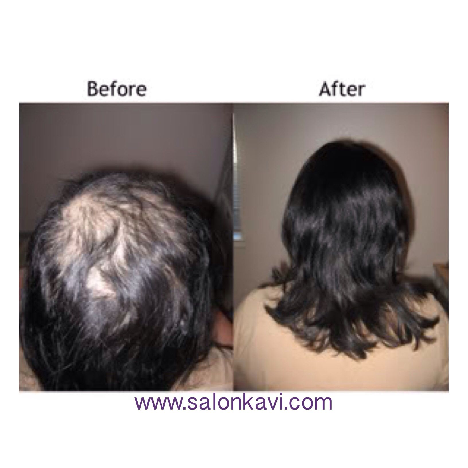 The Best Salon In San Mateo Best Of The Bay Hair Hair Replacement Hair Styles