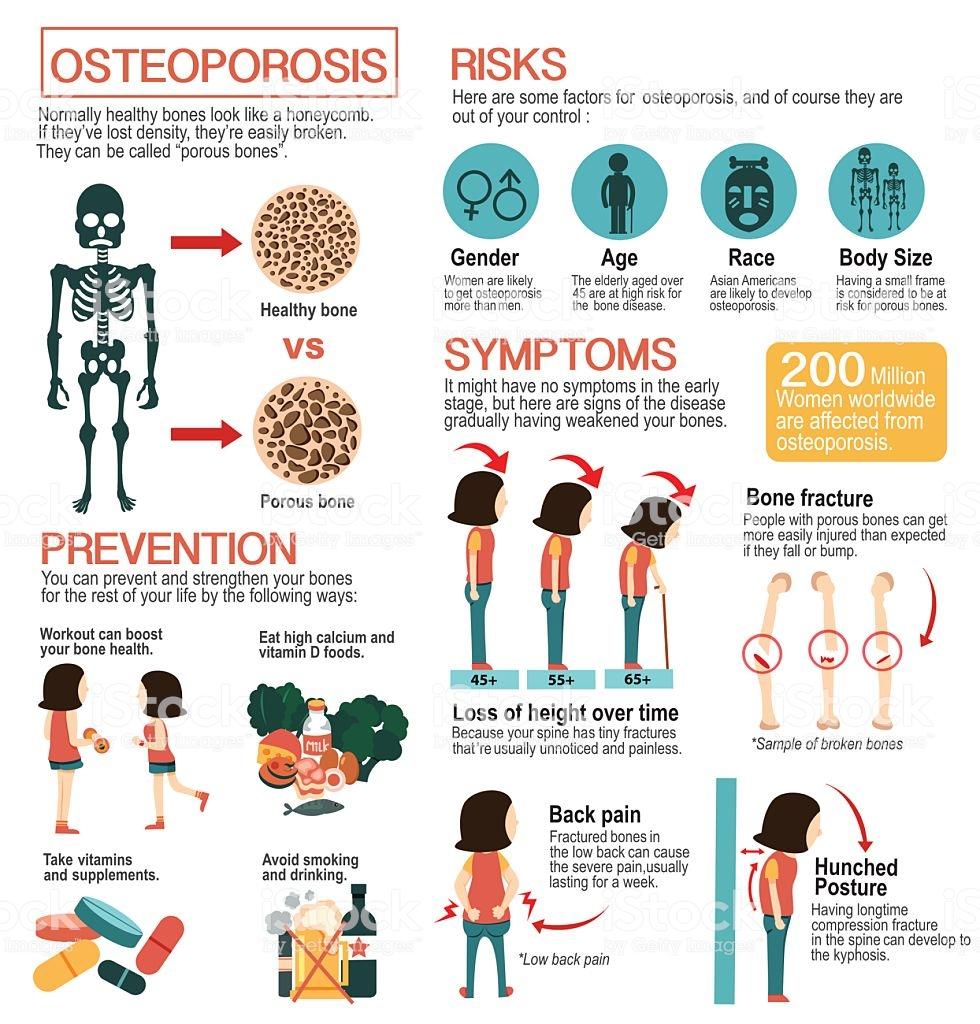 17+ Prevention of osteoporosis in elderly info